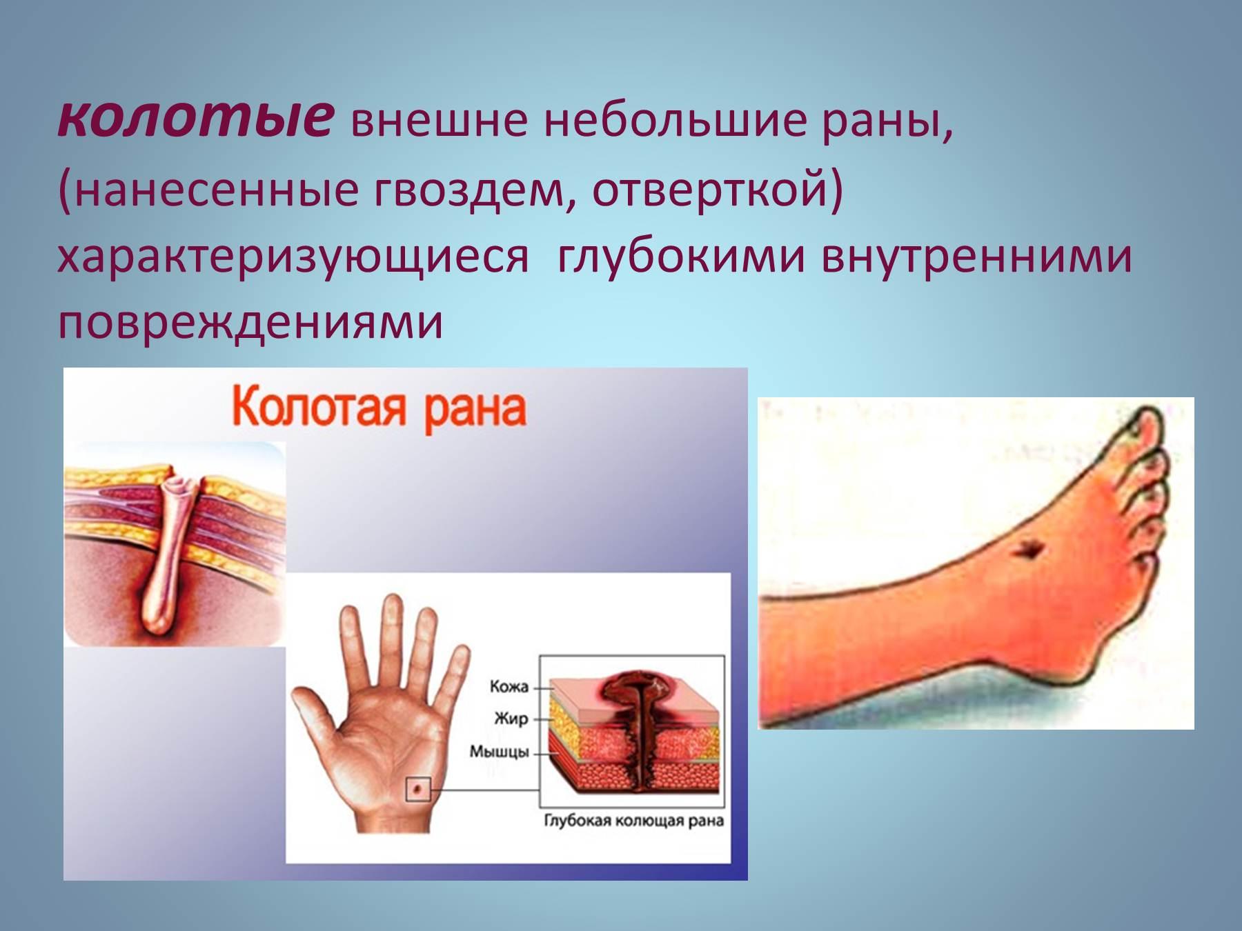 Травма от шила