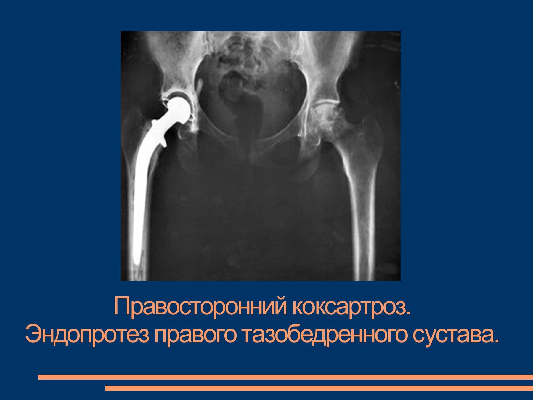 коксоартроз - остеоартроз тазобедренного сустава