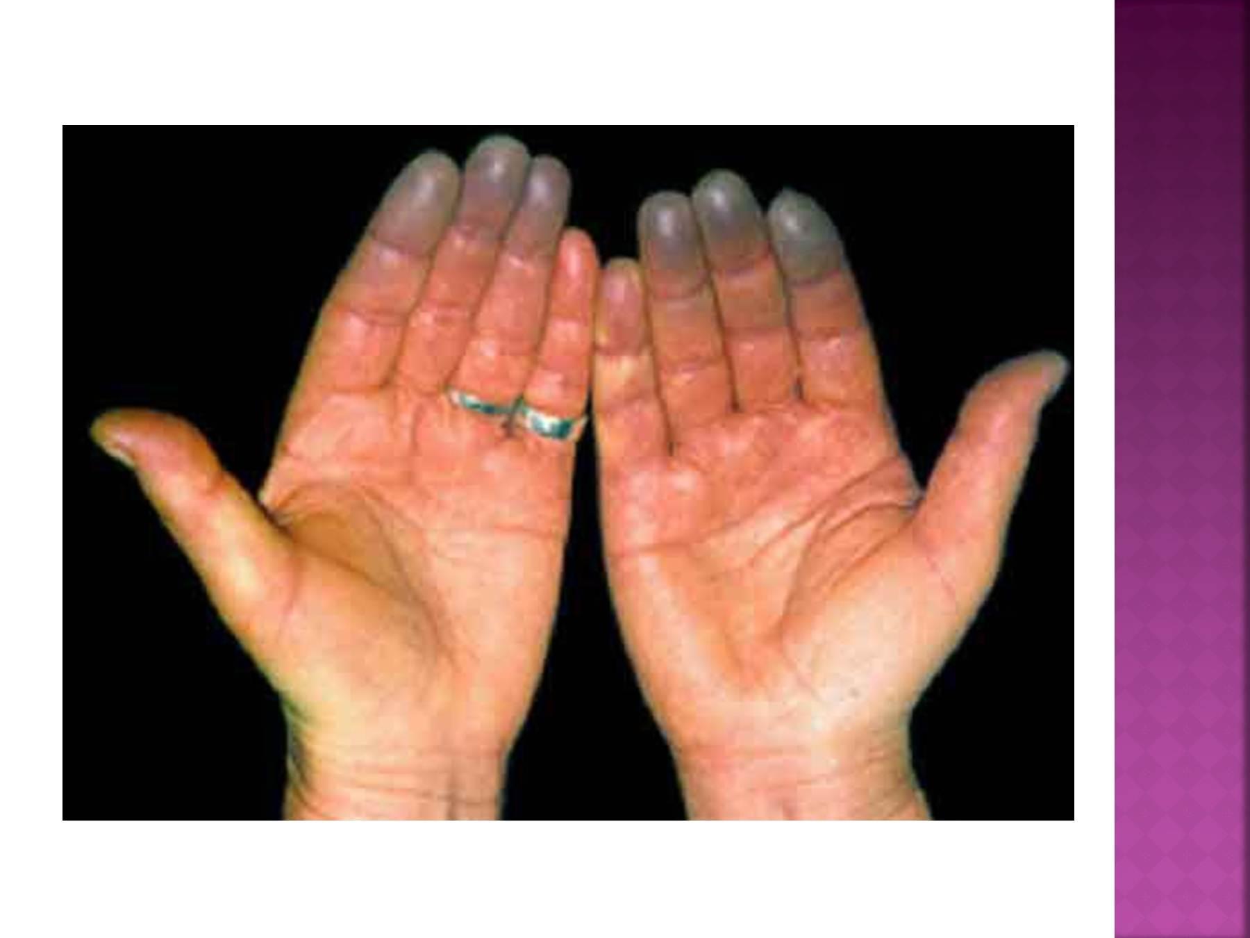Онемение пальцев у беременных 806