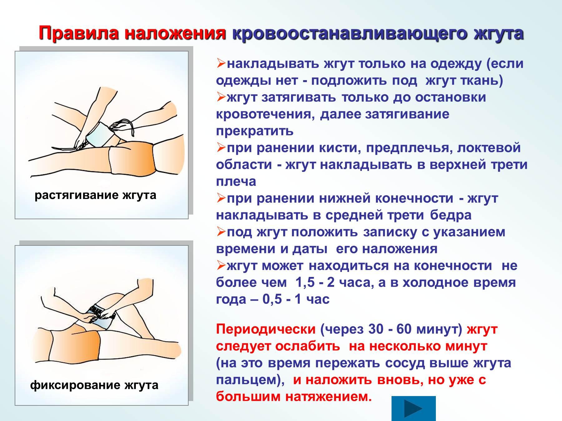 Как правильно выбрать место положения кровоостанавливающего жгута на конечности при артериальном кровотечении