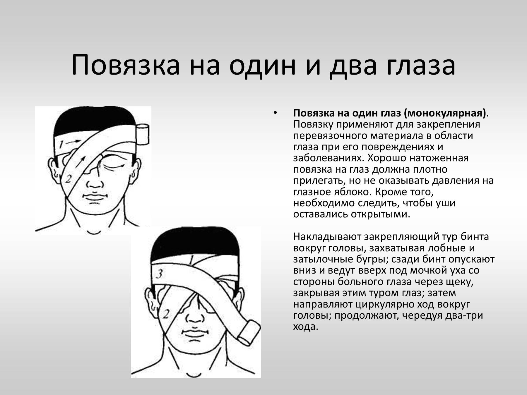 Правила наложения тугой повязки при растяжении 39