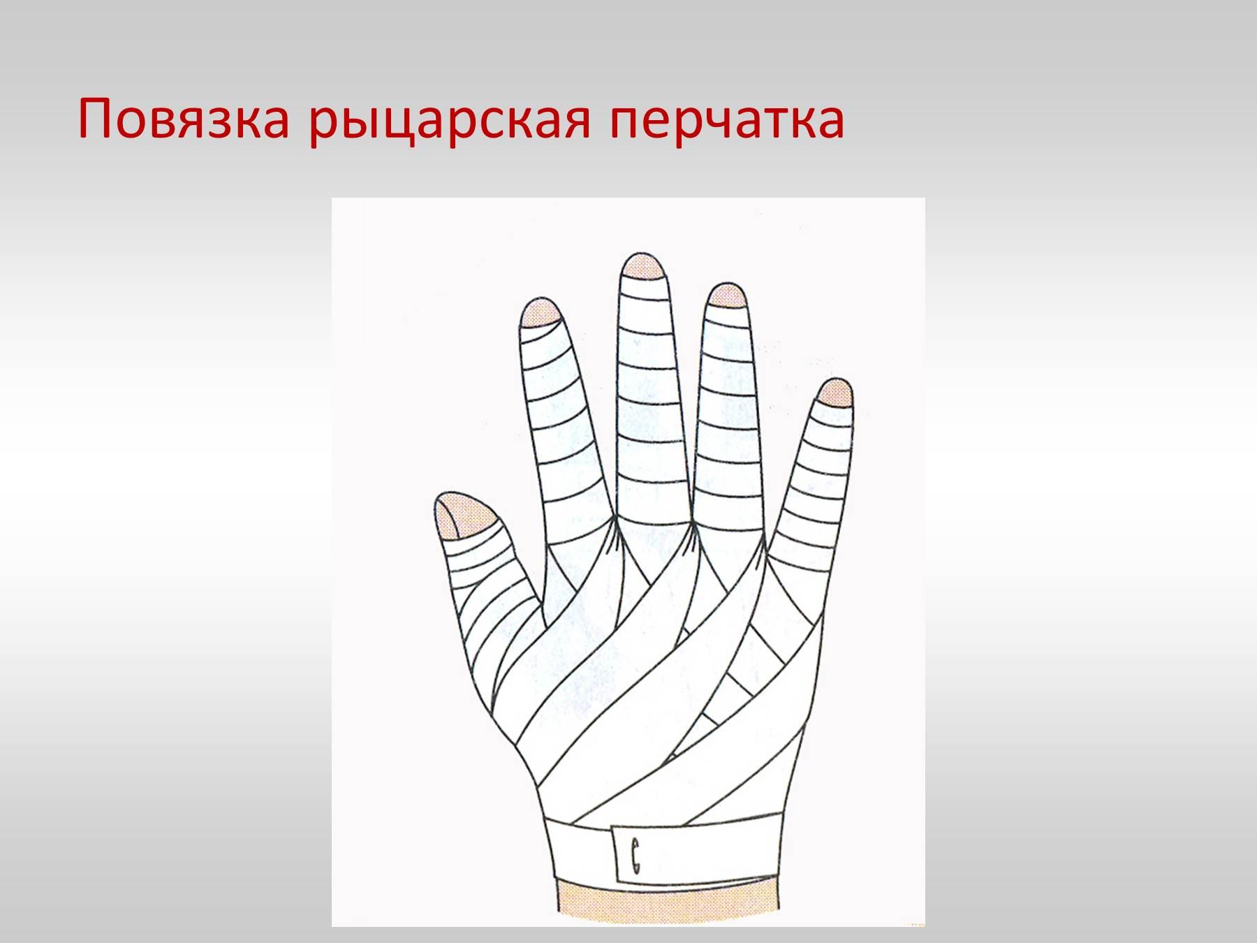 Как правильно сделать перевязку пальца руки